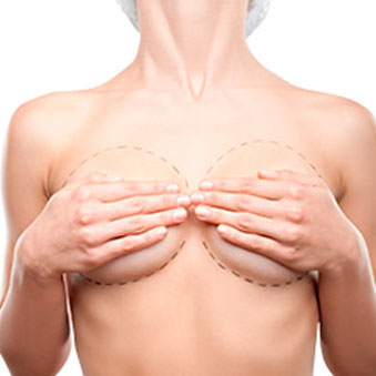 reconstruccion senos cancer